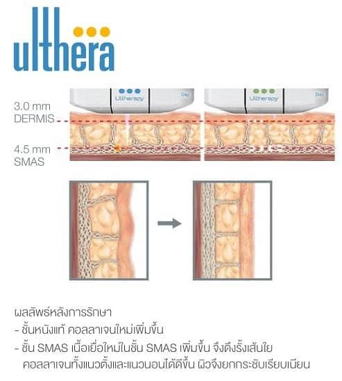 Ulthera ทำที่ไหนดี