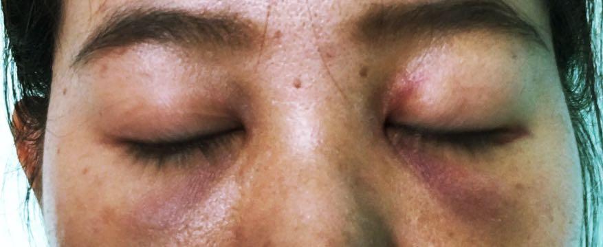 ฉีดฟิลเลอร์ใต้ตา แล้วตาบอด