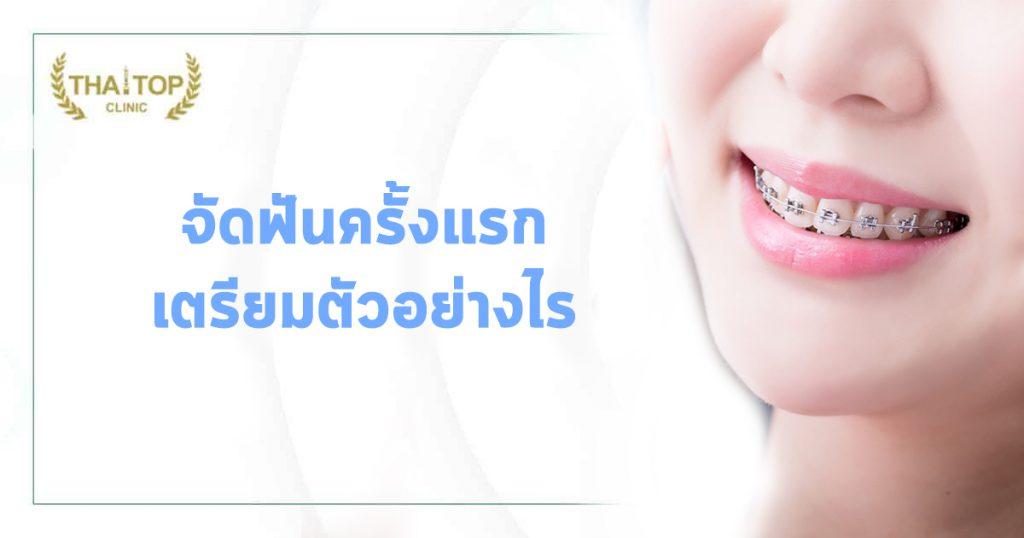 จัดฟันครั้งแรก เตรียมตัวอย่างไร