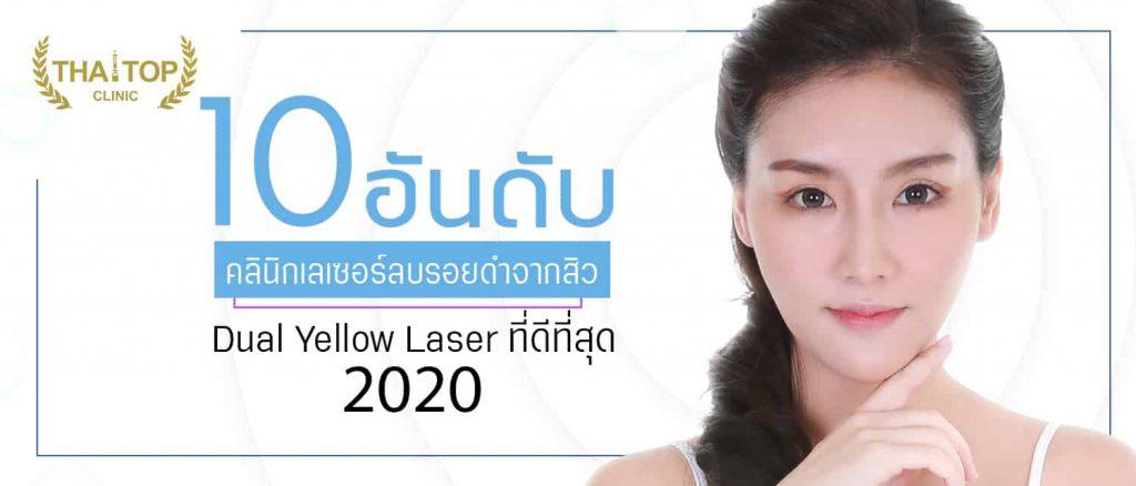 เลเซอร์ลบรอยดำจากสิว Dual Yellow Laser ที่ดีที่สุด
