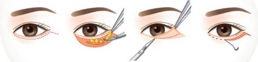 ผ่าตัด ถุงไขมันใต้ตา
