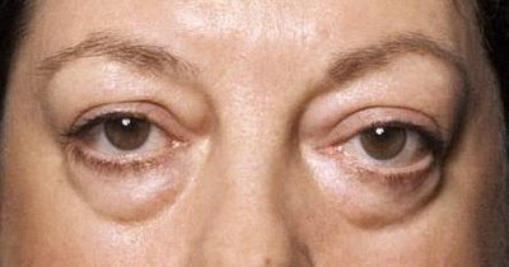 การผ่าตัดถุงไขมันใต้ตา