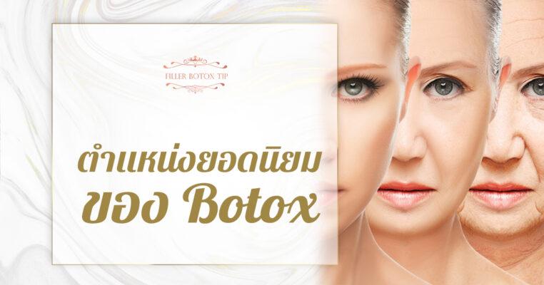 ตำแหน่งยอดนิยมของ Botox